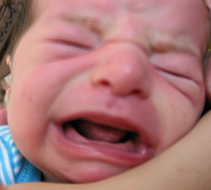 Ankyloglossia is most visible when baby is crying