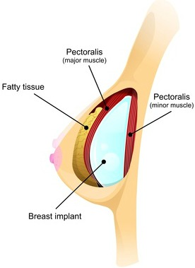 Breast feeding and implant